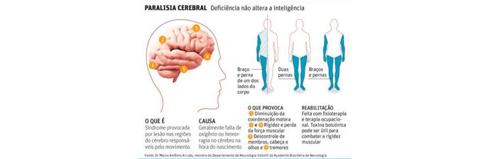 paralisia-cerebral-2