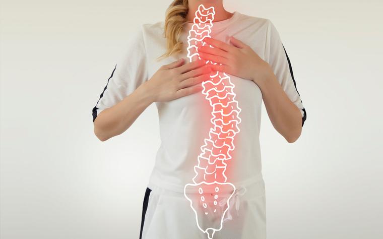 Saiba Tudo Sobre os Sintomas e o Tratamento para Escoliose