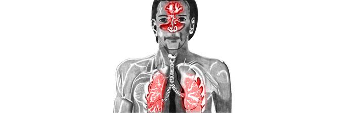 Sistema Respiratório: Congestão