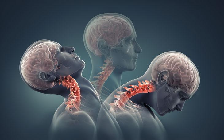 Tratamento Fisioterapêutico de Trauma Raquimedular