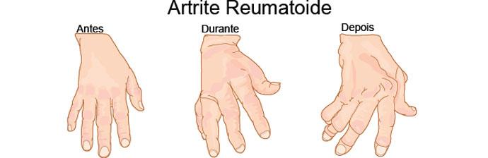 Fases da Artrite Reumatoide