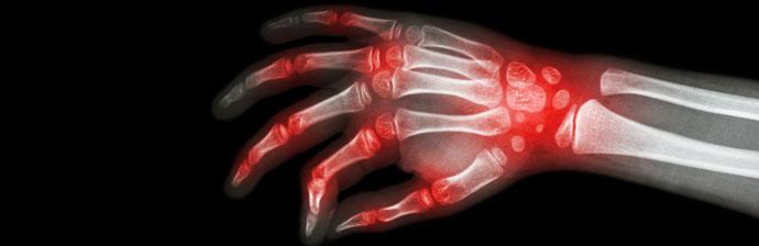 Raio-x: Artrite Reumatoide Juvenil