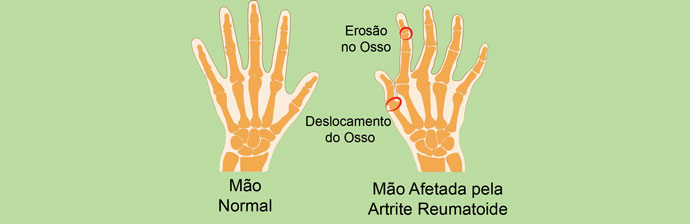 Mão Afetada pela AR