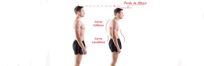 Consequências da Postura