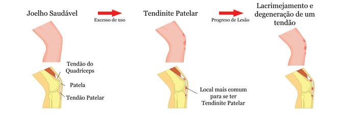 Tendinite Patelar