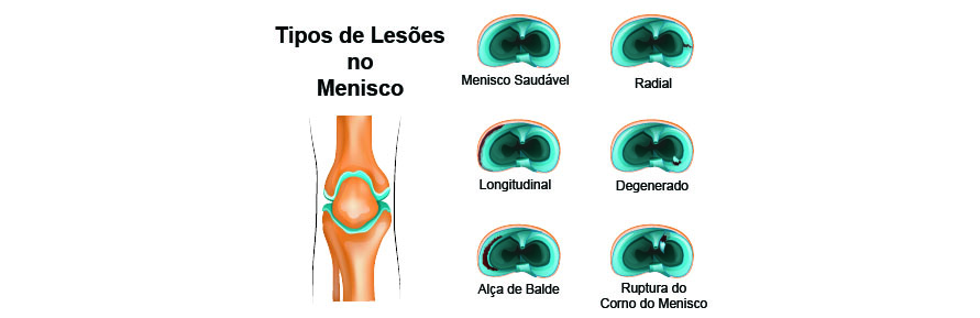 Tipos de lesões no Menisco