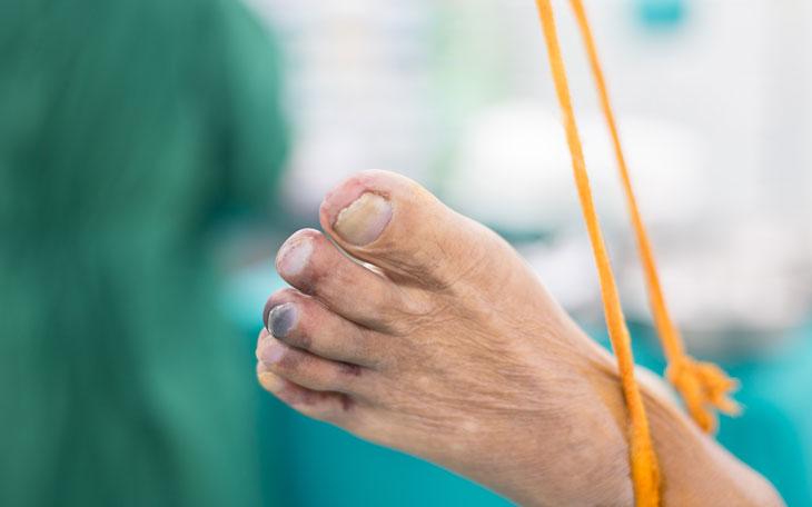 Tratamento Fisioterápico Para Doença Arterial Periférica