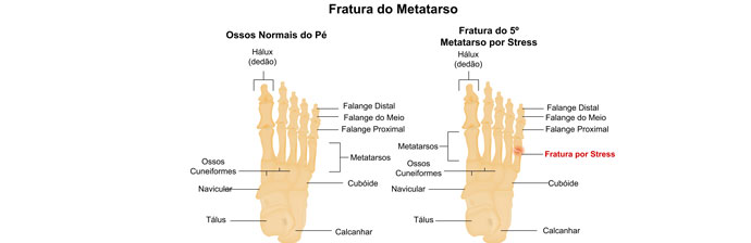 Fratura do Metatarso