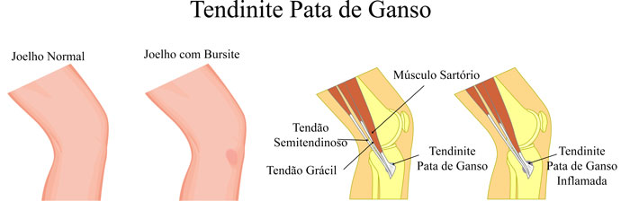 Tendinite Pata de Ganso