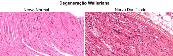 Lesões dos Nervos Periféricos: Degeneração Walleriana