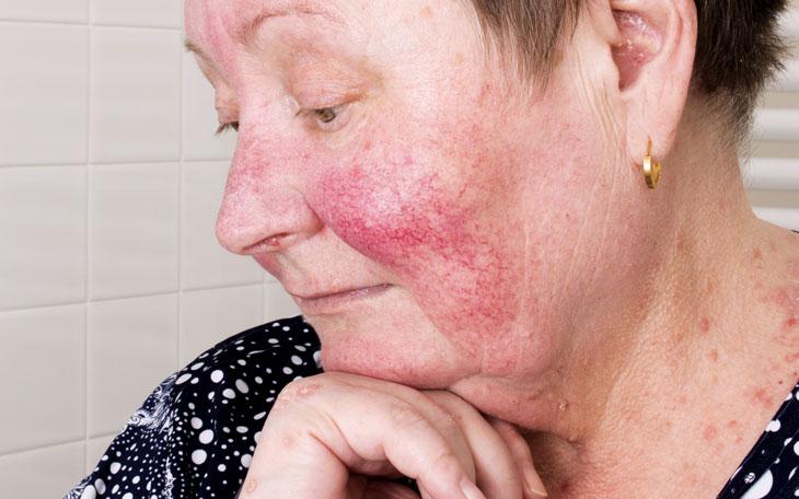 Entenda Tudo Sobre o Tratamento Fisioterapêutico da Dermatomiosite