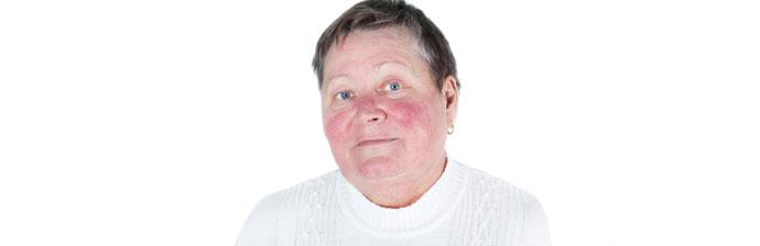Mulher com manchas no rosto