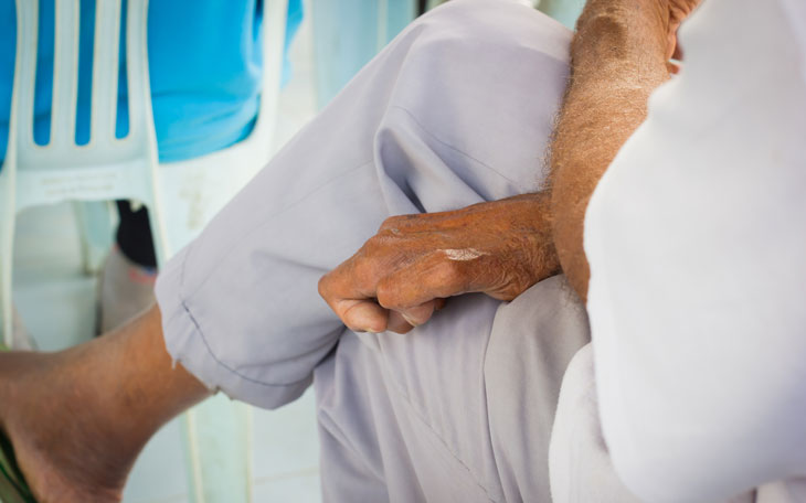O tratamento fisioterapêutico na cura da Hanseníase