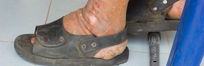 Paciente com Hanseníase no pé