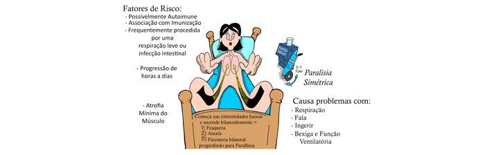 sindrome-de-guillain-barre-2