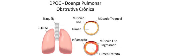 sintomas enfisema pulmonar terminal