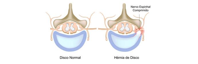 Anatomia Hérnia de Disco