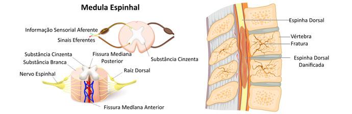 Medula Espinhal Danificada