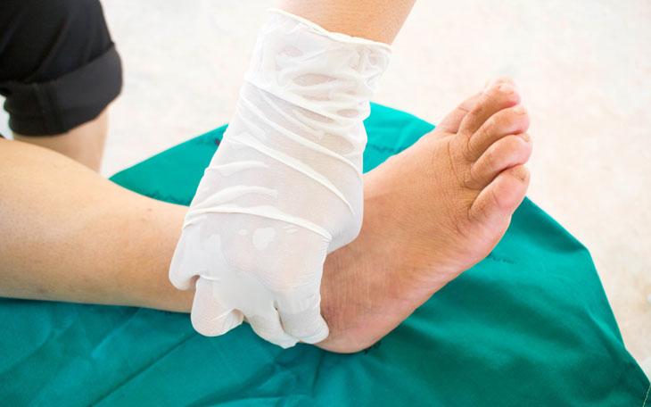 Tratamento fisioterapêutico da doença de Charcot-Marie-Tooth