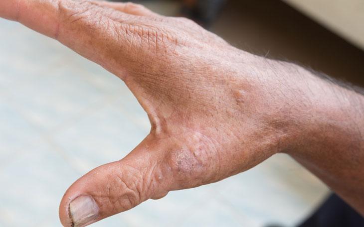Entenda como funciona o tratamento fisioterapêutico da Esclerodermia