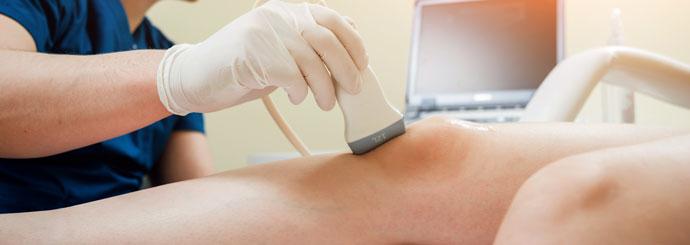 Tratamento fisioterapêutico da Gonartrose