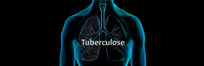 tuberculose-1