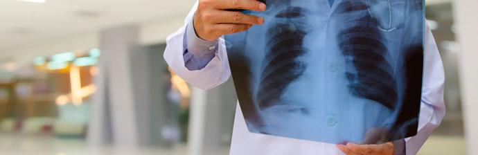 tuberculose-3