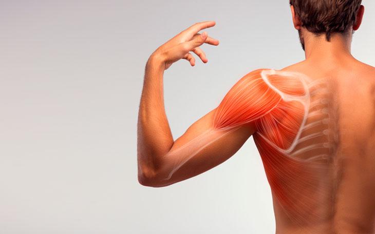 Tendinopatia de Supraespinhal: saiba como a fisioterapia ajuda no tratamento
