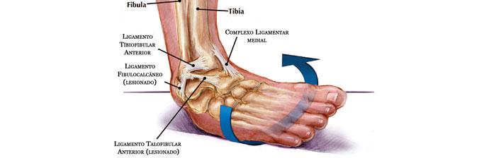 Dos redor ossos tornozelo do descoloração ao