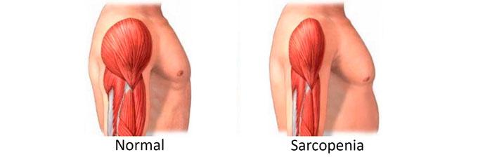 sarcopenia-1