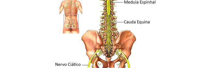 sindrome-da-cauda-equina-1