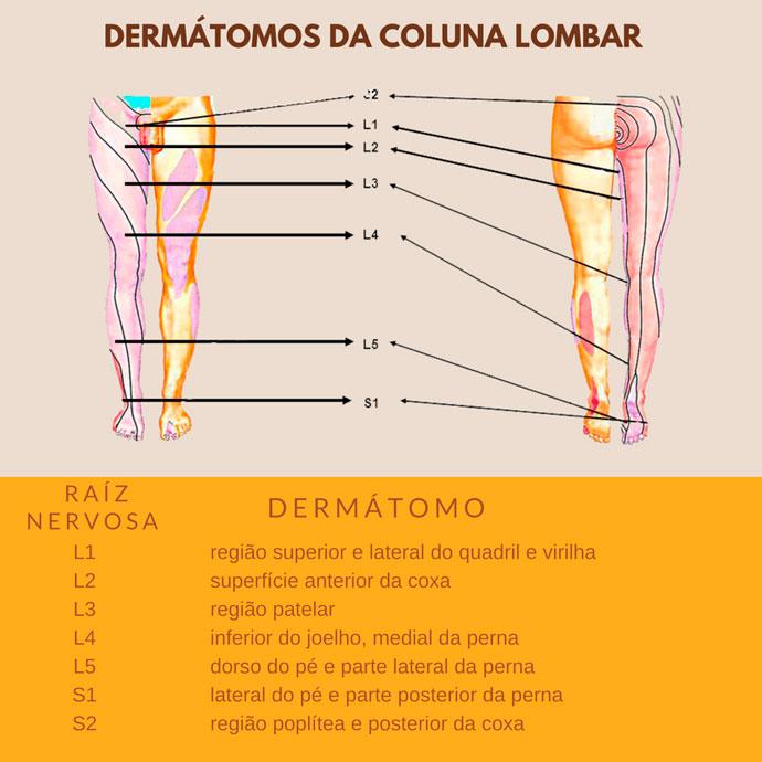 Raiz l5 exercícios compressão de da nervosa