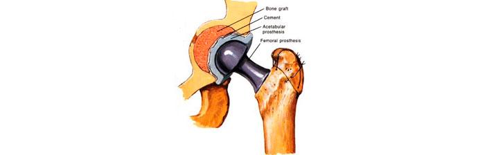 artroplastia-5