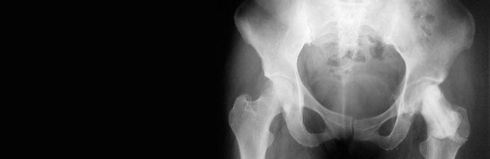 artroplastia-9