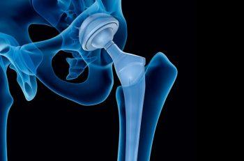 artroplastia-capa