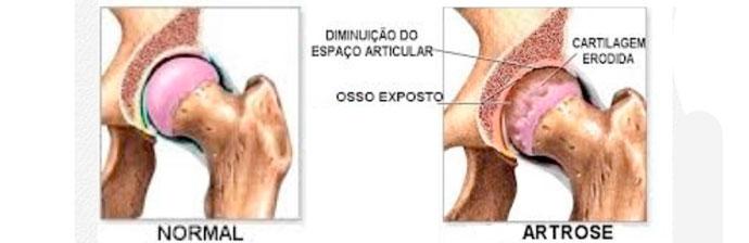 patologias-no-quadril-3