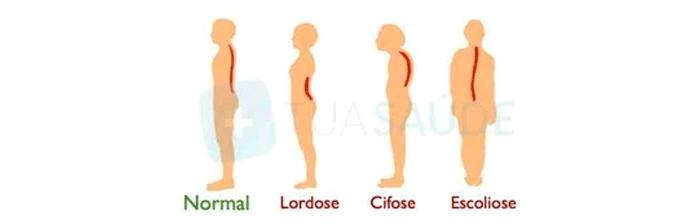 coluna-vertebral-28