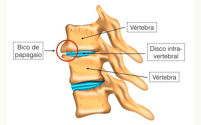 Guia Completo sobre Bico de Papagaio – Osteofitose
