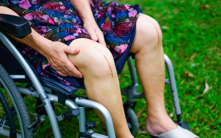 Artroplastia Total do Joelho: Orientações e Reabilitação no Pós-Operatório