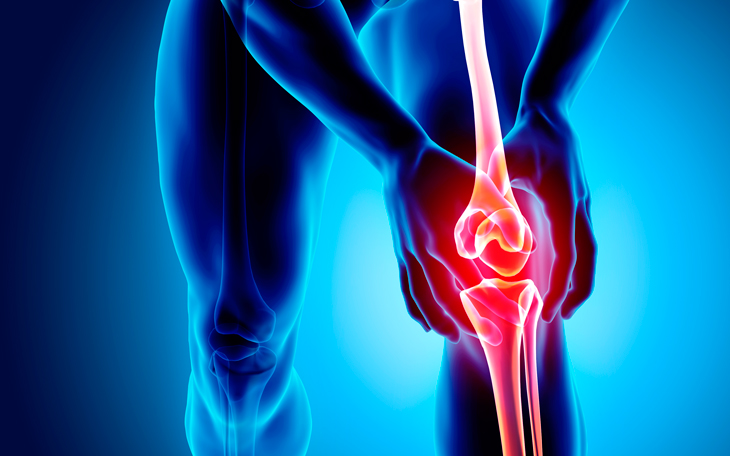 Como a fisioterapia pode ajudar nas principais patologias do joelho?