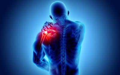 Bursite de ombro: tudo que você precisa saber sobre esta patologia!