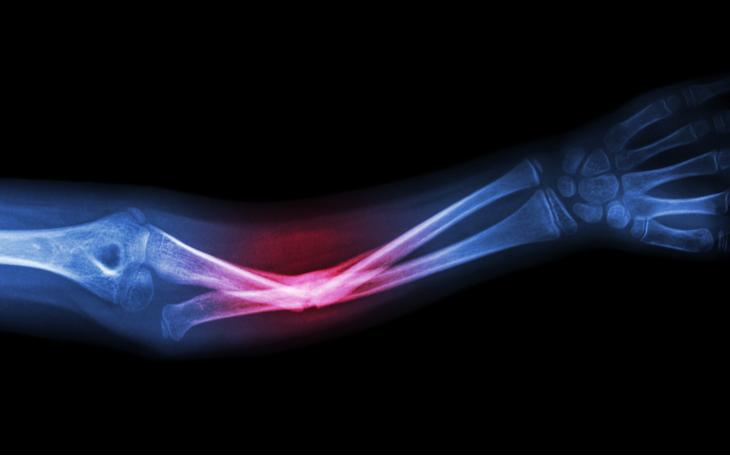 Tudo que você precisa saber sobre fraturas ósseas