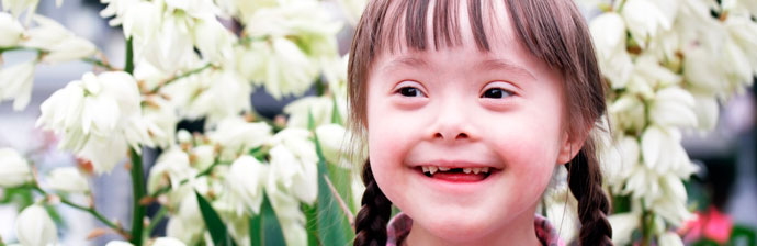 síndrome-de-down-1