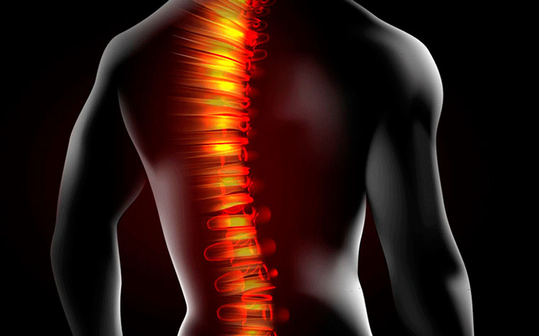 Traumatismo raquimedular: reabilitação motora no pós-operatório