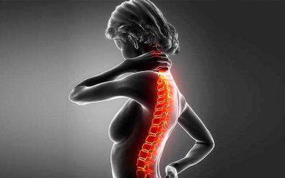 [Infográfico] 4 dicas para o tratamento de hipercifose torácica