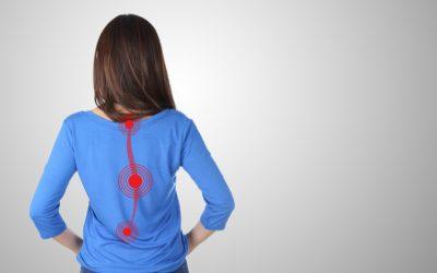 [INFOGRÁFICO] Tratamento da Escoliose: 4 dúvidas que nunca te contaram