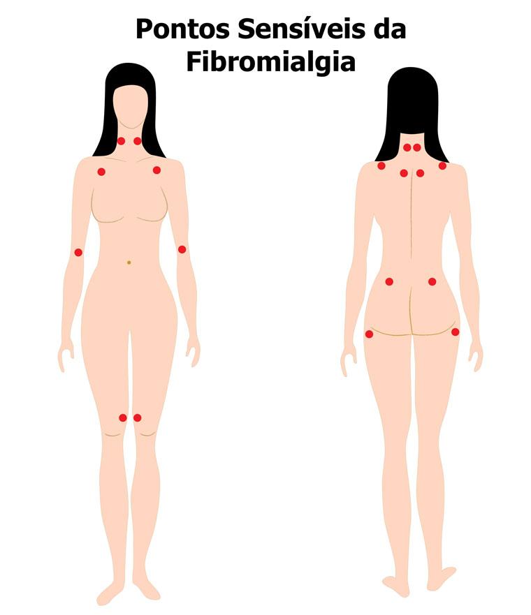terapia manual para fibromialgia