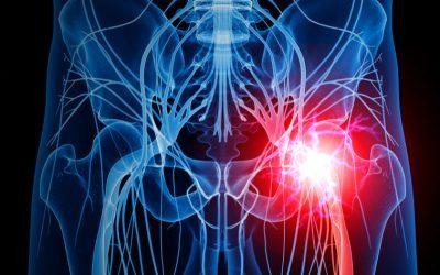 5 causas da inflamação no ciático que você precisa conhecer
