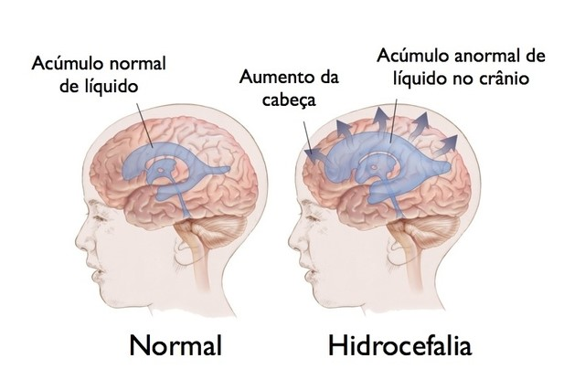 pilates-como-tratamento-auxiliar-para-adultos-com-hidrocefalia