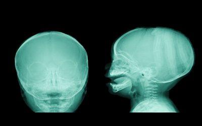 O Método Pilates como tratamento auxiliar para adultos com hidrocefalia